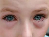 Весенний катар : причины, симптомы, диагностика, лечение