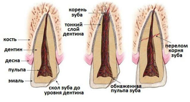 Перелом зуба: причины, симптомы, диагностика, лечение