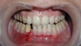 Переломы нижней челюсти у детей: причины, симптомы, диагностика, лечение