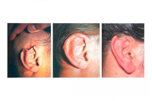 Травмы наружного уха: причины, симптомы, диагностика, лечение