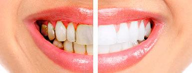 Налет на зубах: причины возникновения и как избавиться?