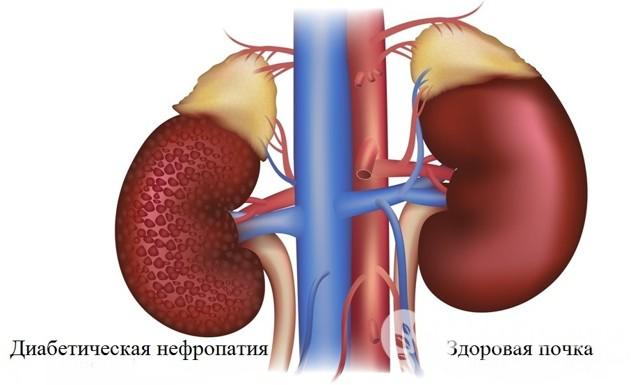 Диабетическая нефропатия - Обзор информации