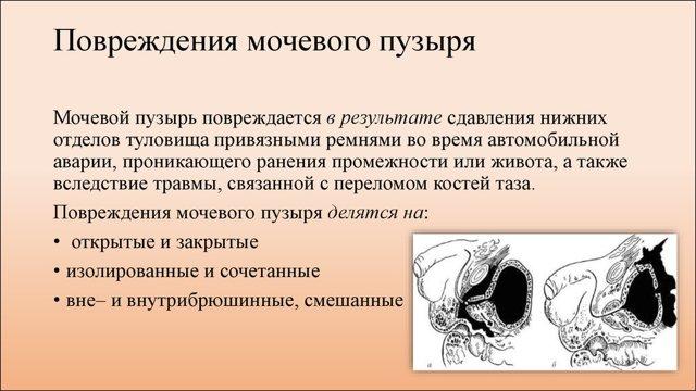 Травмы мочеполовых органов : причины, симптомы, диагностика, лечение