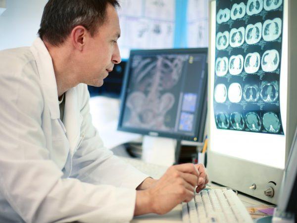Венозная ангиома : причины, симптомы, диагностика, лечение