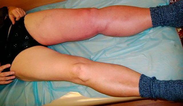 Тромбоз поверхностных вен ног: причины, симптомы, диагностика, лечение