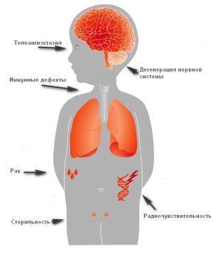 Атаксия телеангиэктатическая (синдром Луи-Бар) : симптомы и лечение