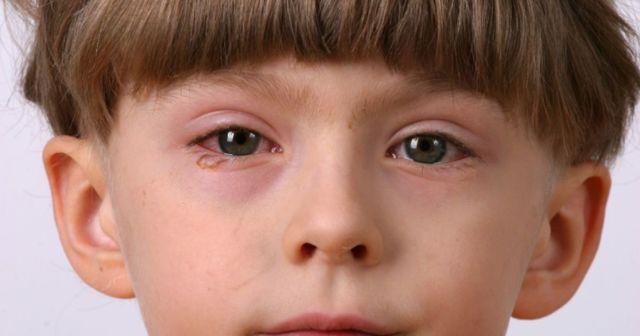 Бактериальные конъюнктивиты и кератиты у детей