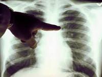 Ку-лихорадка - Лечение и профилактика