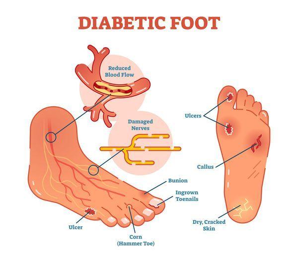 Диабетическая стопа - Обзор информации