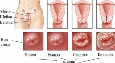 Кровотечение из влагалища в последние сроки беременности