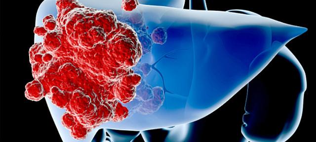 Печёночная недостаточность при химиотерапии рака