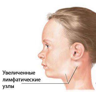 Туберкулёз внелёгочной локализации: причины, симптомы, диагностика, лечение