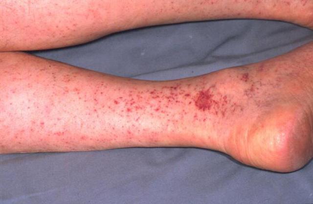Крымская геморрагическая лихорадка - Причины и патогенез