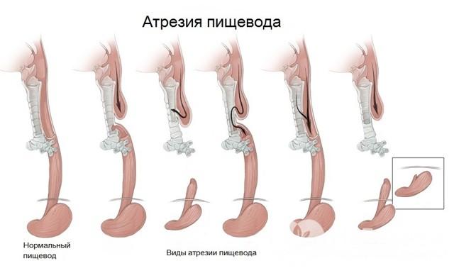 Атрезия пищевода : причины, симптомы, диагностика, лечение