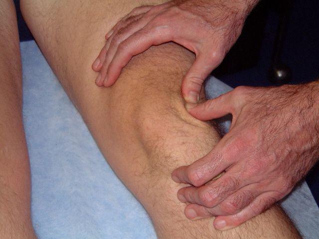 Опухшие коленные суставы (опухло колено)