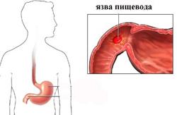 Хроническая постгеморрагическая анемия: причины, симптомы, диагностика, лечение
