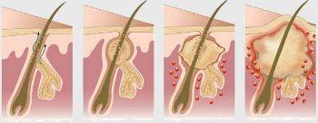 Гидраденит: причины, симптомы, диагностика, лечение