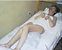 Апаллический синдром : причины, симптомы, диагностика, лечение