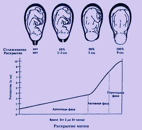 Беременность - схватки и родовая деятельность: план родов
