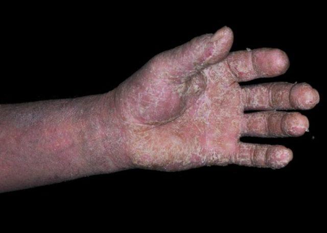 Аллергический дерматит у детей и взрослых: симптомы, лечение
