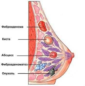 Уплотнение около соска : причины, диагностика, лечение