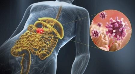 Острый гастроэнтерит, вызванный вирусом Норволк
