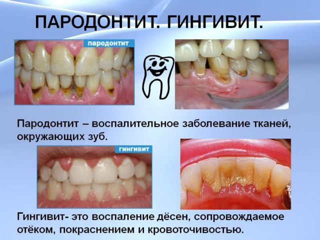 Боль в зубе после удаления нерва