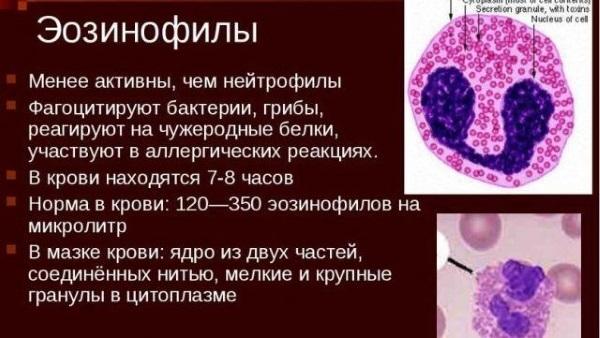 Эозинофилия : причины, симптомы, диагностика, лечение