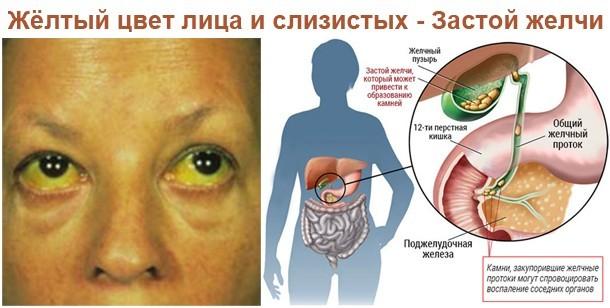 Застой желчи : причины, симптомы, диагностика, лечение