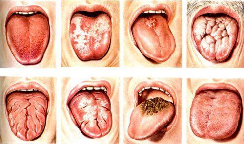 Кандидоз слизистой оболочки полости рта