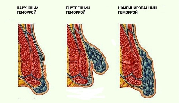 Гепариновая мазь при ушибах : инструкция по применению