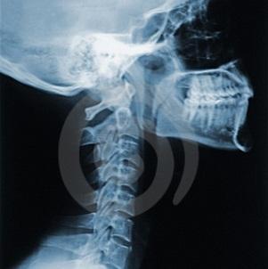 Травмы шейного отдела позвоночника: причины, симптомы, диагностика, лечение