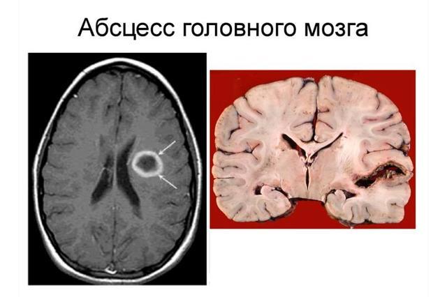 Абсцессы головного и спинного мозга - Лечение и прогноз