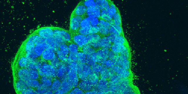 Таблетки от рака кишечника : названия и способы применения