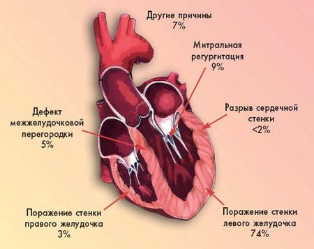 Кардиогенный шок : симптомы и лечение