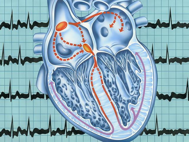 Хроническая сердечная недостаточность при беременности