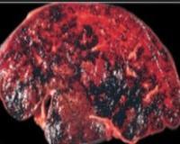 Венооккпюзионная болезнь печени: причины, симптомы, диагностика, лечение