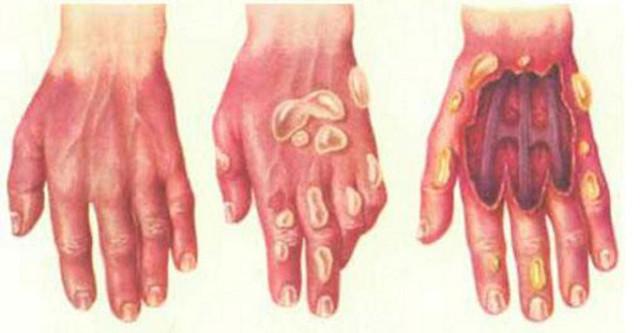 Ожог серной кислотой : причины, симптомы, диагностика, лечение
