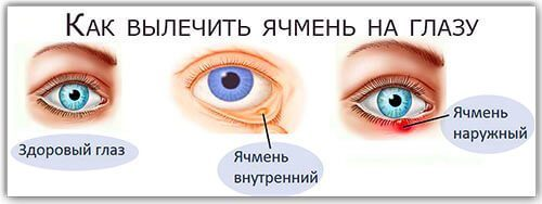 Ячмень на глазу : причины, симптомы, диагностика, лечение