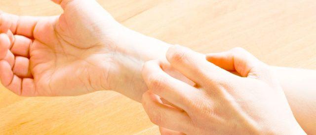 Лечение опрелости : методы и средства лечения