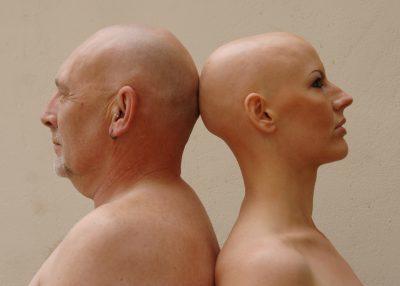 Алопеция андрогенетическая : причины, симптомы, диагностика, лечение