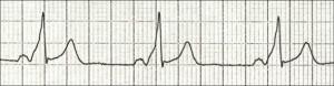 Внезапная сердечная смерть у спортсменов: причины, симптомы, диагностика, лечение