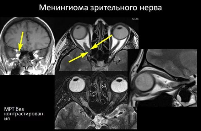 Опухоли зрительного нерва у детей