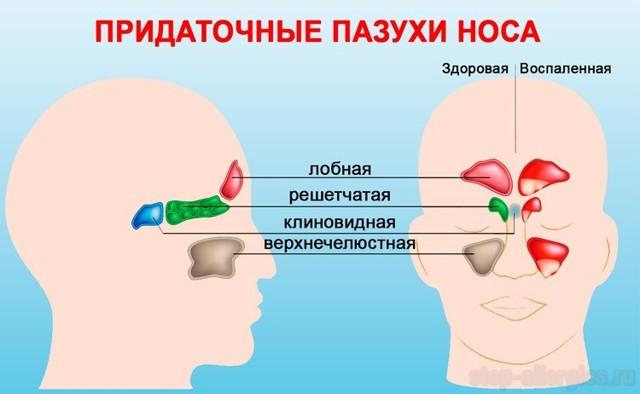 Аденокистозный рак (цилиндрома) полости носа
