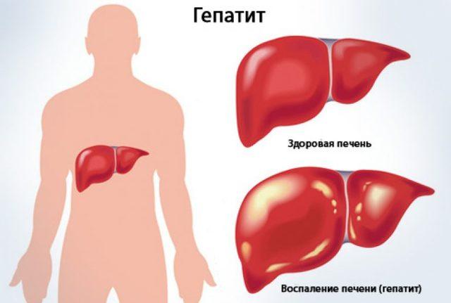 Ишемический гепатит: причины, симптомы, диагностика, лечение