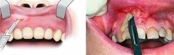 Периостит челюсти : симптомы и лечение
