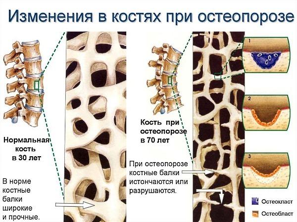 Анализ костной ткани и крови: как похудеть с его помощью?