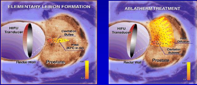 hifu-терапия и криодеструкция - малоинвазивные лечение рака простаты