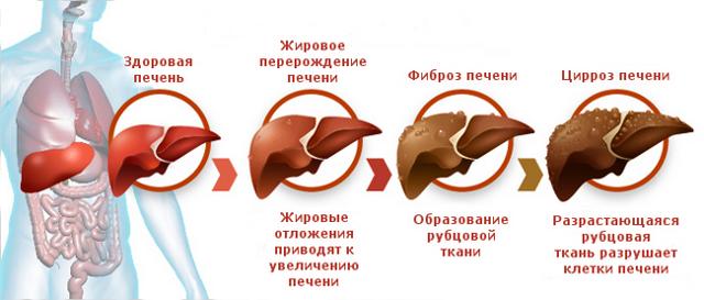 Гиперспленизм: причины, симптомы, диагностика, лечение