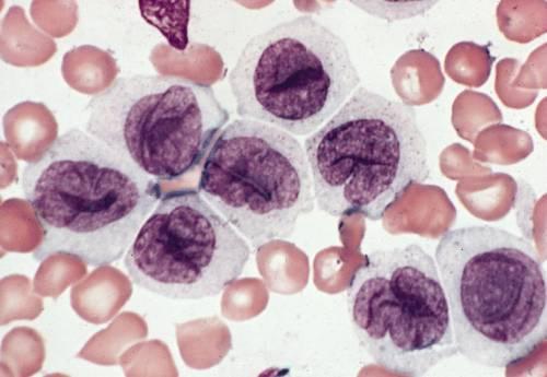 Анемия при хроническом заболевании: причины, симптомы, диагностика, лечение